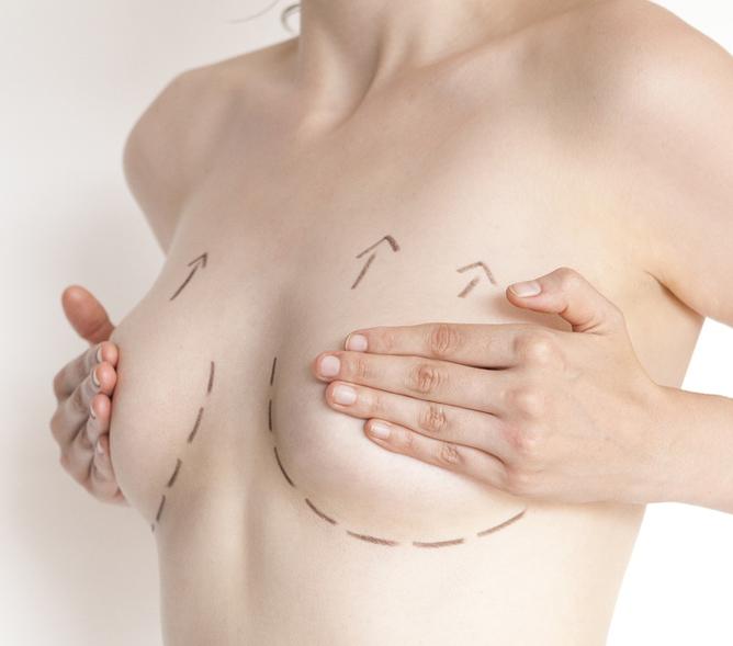 chirurgia estetica-riduttiva