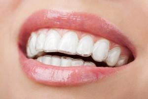 ortodonzia 2