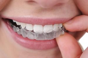ortodonzia 1